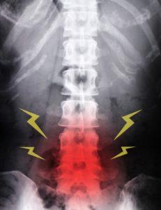 image-腰痛は構造よりも動きが大事 | よねなが治療院
